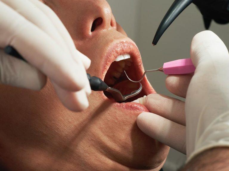 Kiedy powinniśmy podjąć decyzję o założeniu aparatu ortodontycznego?